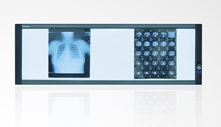 高频医用观片灯应该如何选择?